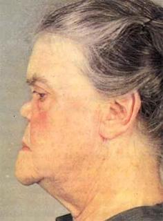 признак третичного периода сифилиса