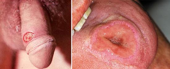 проявление сифилиса твердый шанкр