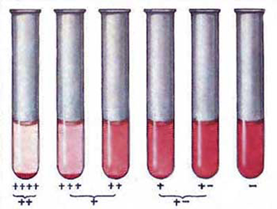реакция Вассермана анализ крови на сифилис