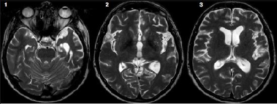 поздний нейросифилис