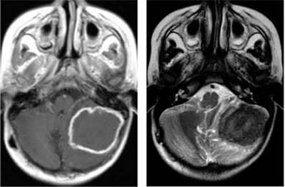 гумма головного мозга