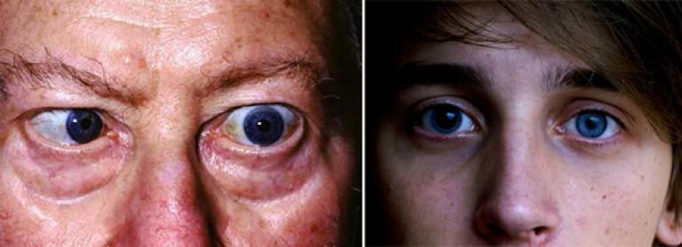 поражение глаз при третичном сифилисе