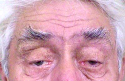 птоз (опущение век) нейросифилис