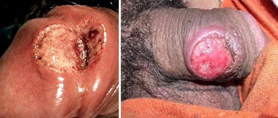 осложнение сифилом у мужчин