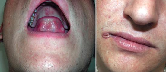 сифилис во рту сифилитическая заеда