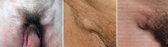фото симптом первичного сифилиса