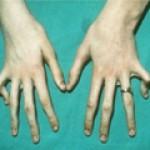 Признаки и симптомы позднего врожденного сифилиса