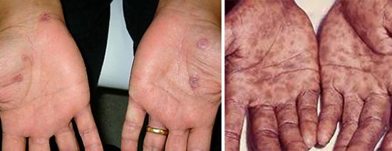 ладонный сифилид вторичный сифилис