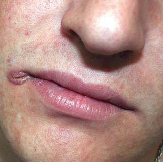 сифилитическая заеда вторичный сифилис