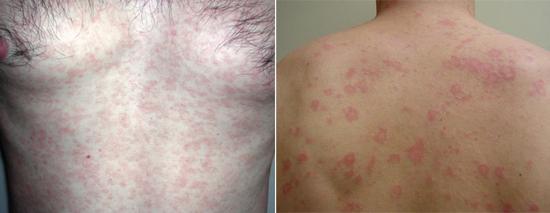сифилитическая розеола сыпь при сифилисе