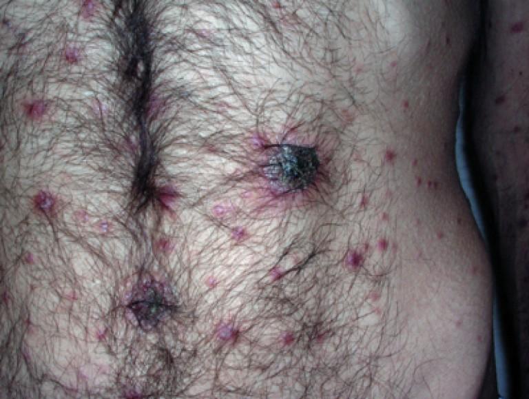 сифилитическая эктима при ВИЧ