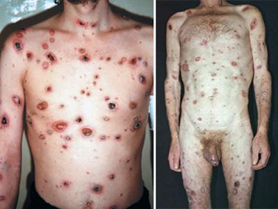 злокачественный сифилис