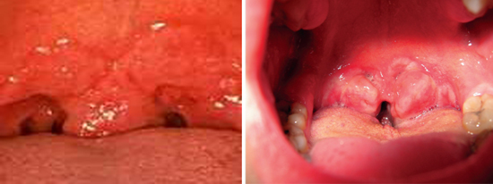 сифилитическая розеола в полости рта