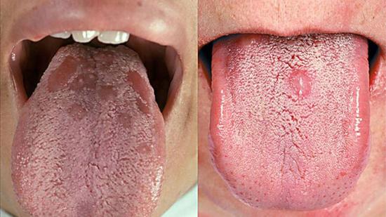 сифилис во рту папулезный сифилид языка