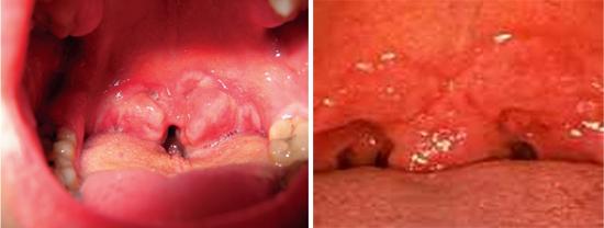 сифилис во рту сифилитическая ангина