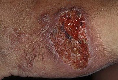 кожа внекишечный амебиаз фото
