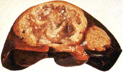 внекишечный амебиаз печень