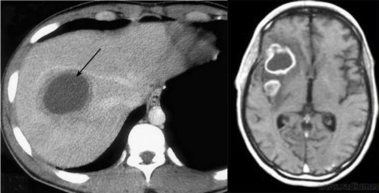 амебный абсцесс печени фото головного мозга