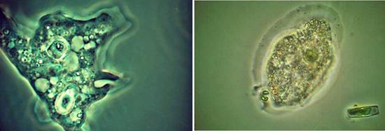 фото амебы