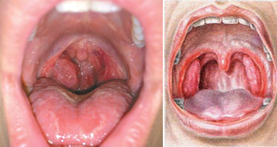 ангинозная форма сифилиса