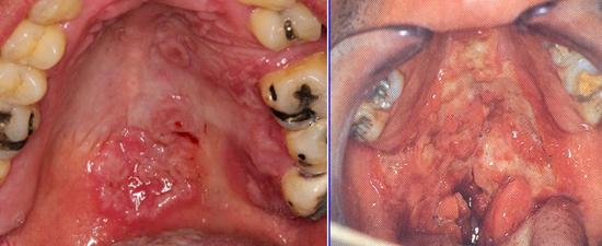 язвы во рту при третичном сифилисе