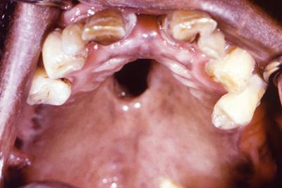 сифилиса во рту