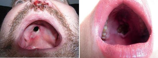 последствия третичного сифилиса