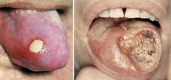 третичный сифилис на языке