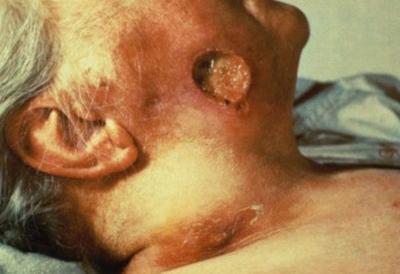 сифилис на лице третичный