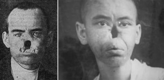 сифилис носа третичный период