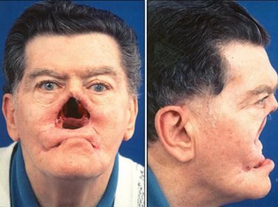 разрушение носа сифилис