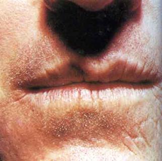 последствия врожденного сифилиса