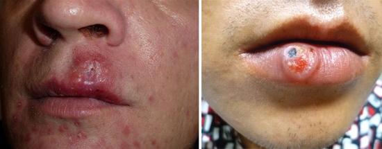 сифилис на губах фото