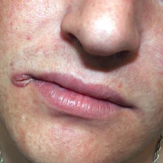 сифилис на губах