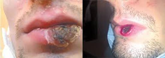 гуммозное поражение губ фото