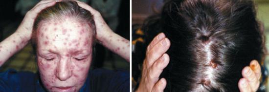 сифилис вторичный на лице