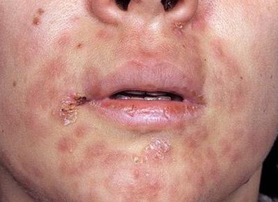 сифилис на лице