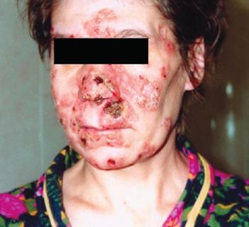 сифилис на лице фото
