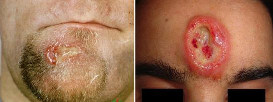 Распад гуммы на лице