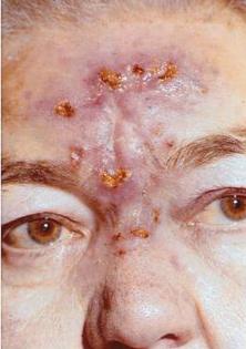 бугорковый сифилид лица