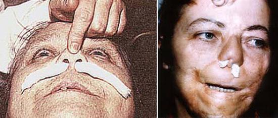сифилис носа третичный