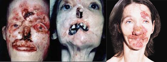 последствия сифилиса на лице