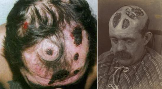 гуммозная инфильтрация кожи
