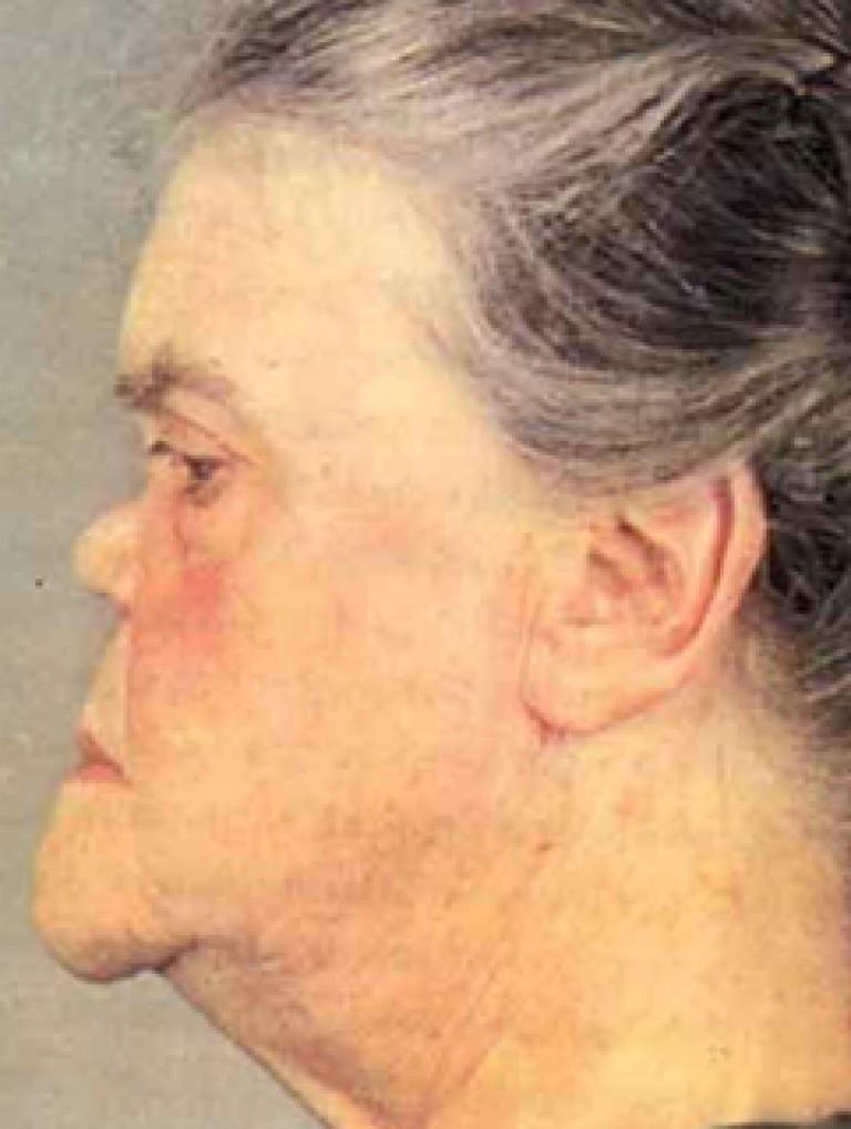 Проявления сифилиса на лице: носу, губах, веках и голове. Много фото