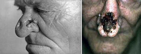 сифилис носа гуммозный процесс