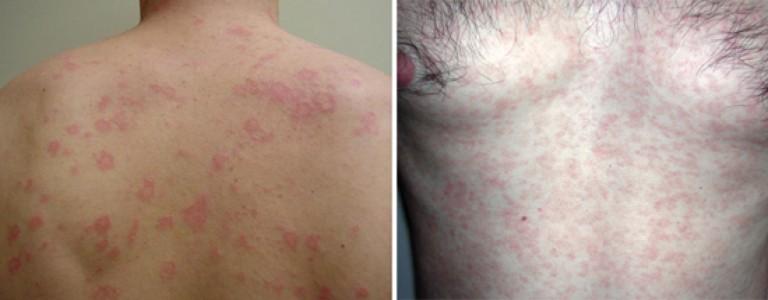 Скрытый сифилис ранний и поздний: симптомы, признаки, диагностика и лечение. Фото