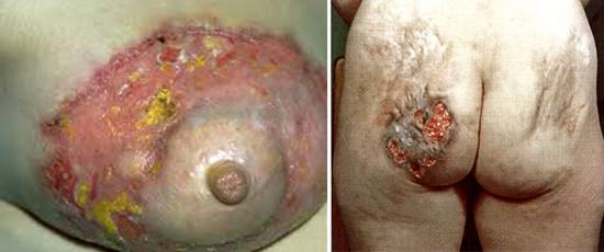 поздний сифилиса гумма