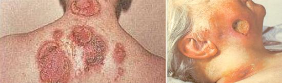 третичный период сифилиса фото
