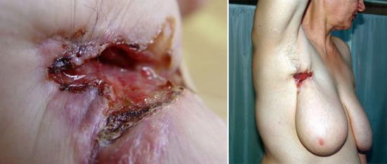 рубец сифилис
