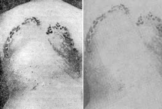 бугорковый сифилид фото